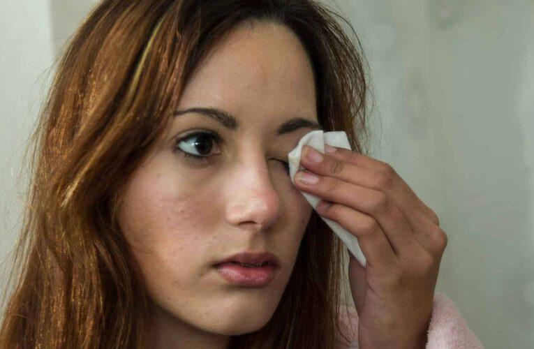 1626943800 Cuidado ao usar camomila para limpar os olhos essas sao